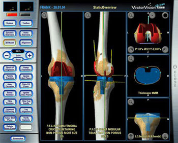 Knee Replacement Navigation System
