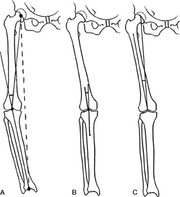 Mechanical Axis of the Lower Limb