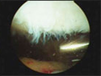 Arthroscopic Chondroplasty