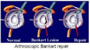 Bankart Repair for Shoulder Dislocation