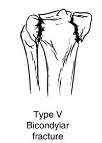 Fracture involving both the Condyles
