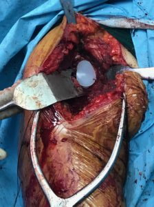 GLENOID REPLACEMENT