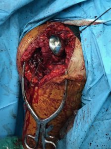 HUMERAL HEAD REPLACEMENT