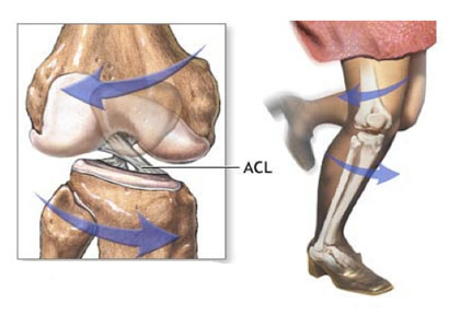 ACL Mechanism of Injury