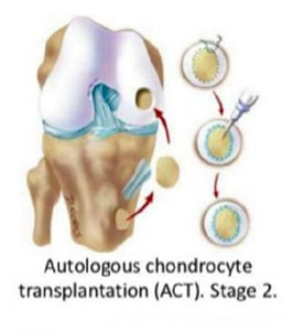 Autologus Chondrocyte Implantation