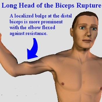biceps tendon rupture bulge