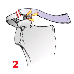 Disjonction Acromio Claviculaire stage 2
