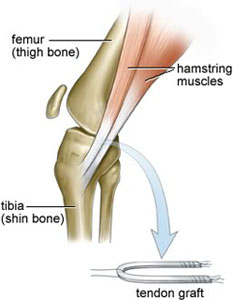 Hamstring Graft for ACL