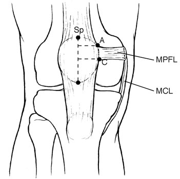 Medial Patellofemoral Ligament