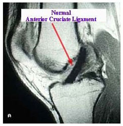 MRI of Normal ACL