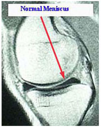 MRI of Normal Meniscus