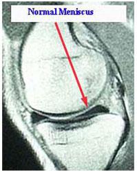 MRI of Normal Meniscus