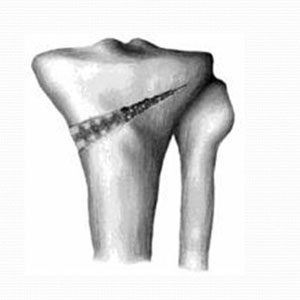 Open Wedge Osteotomy