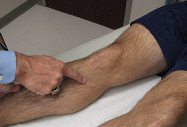 pes anserine bursitis clinical test
