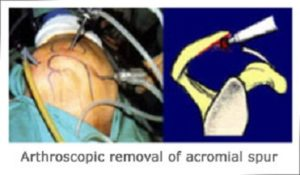 Subacromial Bursitis Decompression Surgery