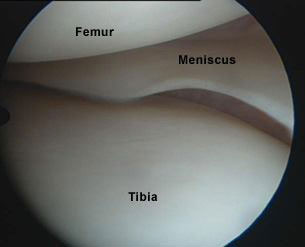 Normal Meniscus