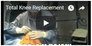 Total Knee Replacement (TKR) Surgery performed by Dr. Amyn Rajani, Consultant Orthopaedic Surgeon