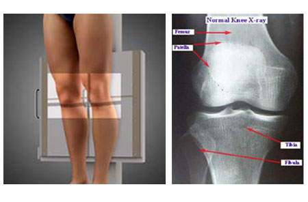 Knee (AP Weight-Bearing View)