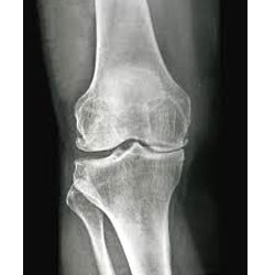 Stage 3 Medial Compartmental Osteoarthiritis