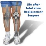 Life after Total knee Replacement Surgery (