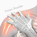 Everything about Frozen Shoulder (1)