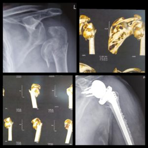 Reverse Shoulder Arthroplasty for Proximal Humeral Fractures