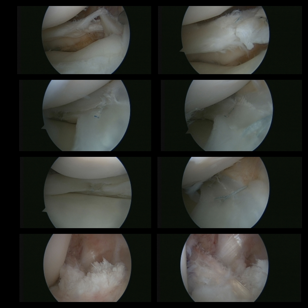 Medial Meniscus Repair for 17-yr-old Patient