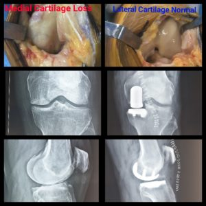 85-yr-old patient on whom Partial Knee Replacement was performed by Dr. Amyn Rajani