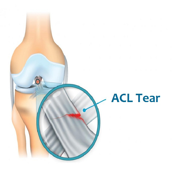 Tricks & Tips Prevent Anterior Cruciate Ligament Tears
