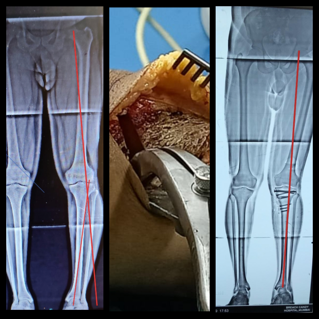 Reviving the Forgotten Art of Open Wedge High Tibial Osteotomy