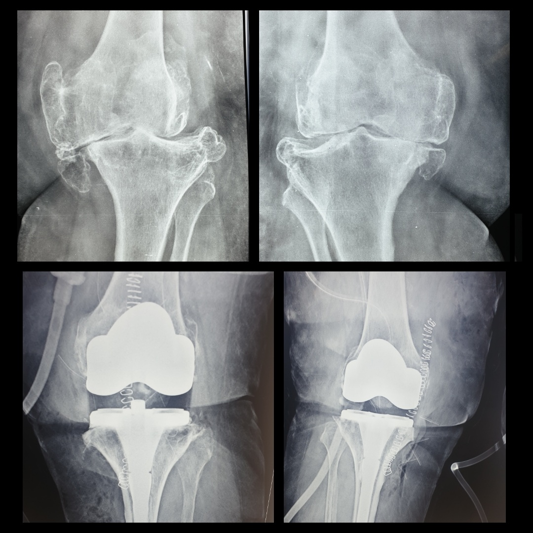 Single-Stage Bilateral Total Knee Replacement Surgery Success
