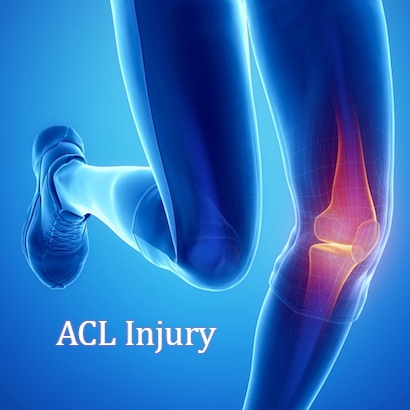 ACL Injury – What do you need to know?