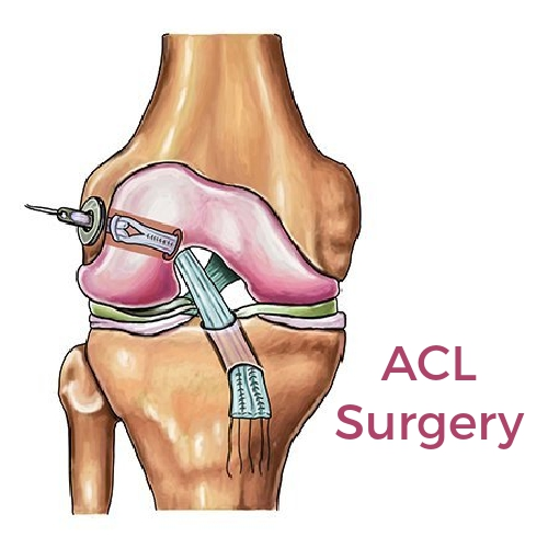 Do You Know What Happens During an ACL Surgery?