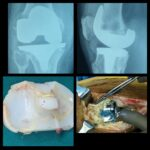 Revised Total Knee Replacement Surgery of a 75 yrs old Male By Dr. Amyn Rajani