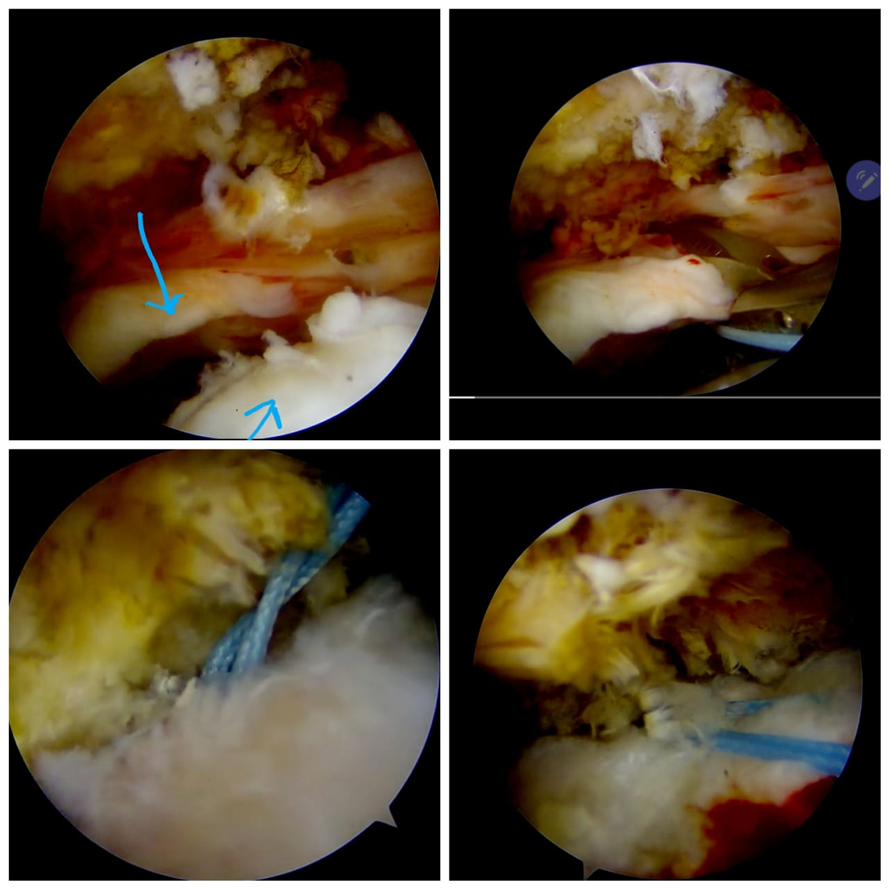 Repairing Shoulder Tear of a 65-years-old Patient During COVID-19