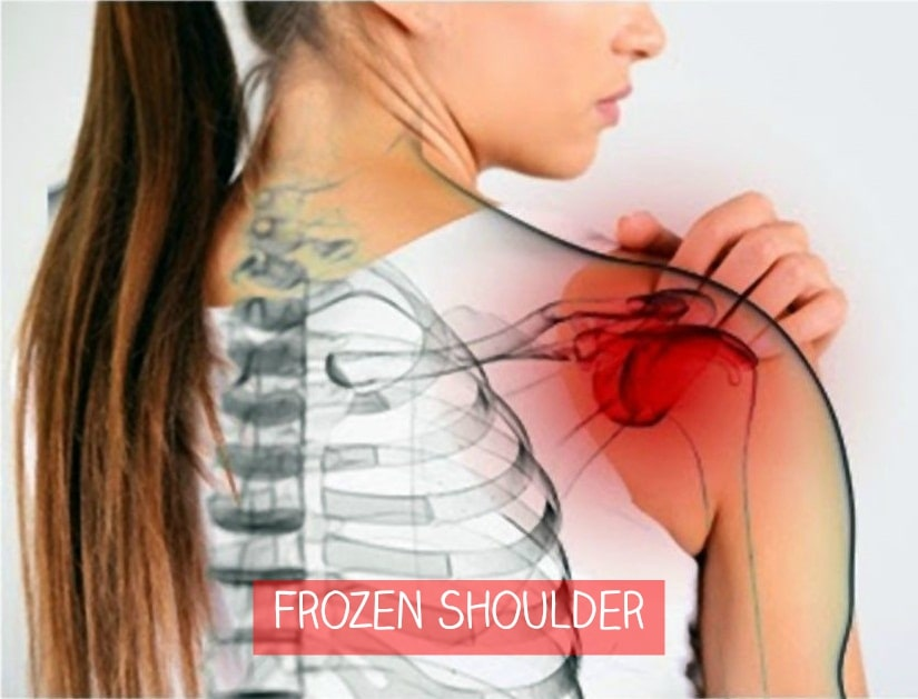 Methods Of Treating Frozen Shoulder