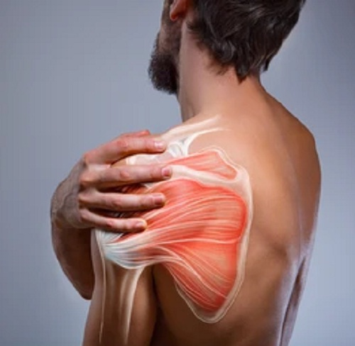 Should Shoulder Synovitis Be Treated Surgically