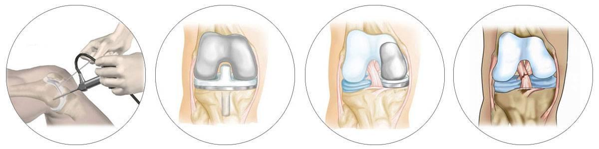 Knee Shoulder Arthroscopy & Joint Replacement Fellowship